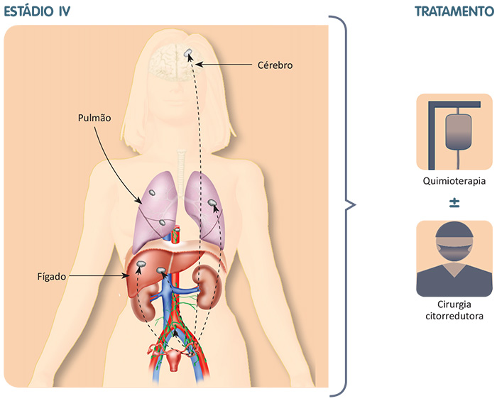 Metástases pulmonares, hepáticas, cerebrais e o tratamento específico para essa fase da doença.