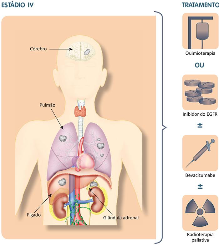 Esquema que mostra os locais mais comuns de metástases do câncer de pulmão de células não pequenas e as modalidades de tratamentos disponíveis.