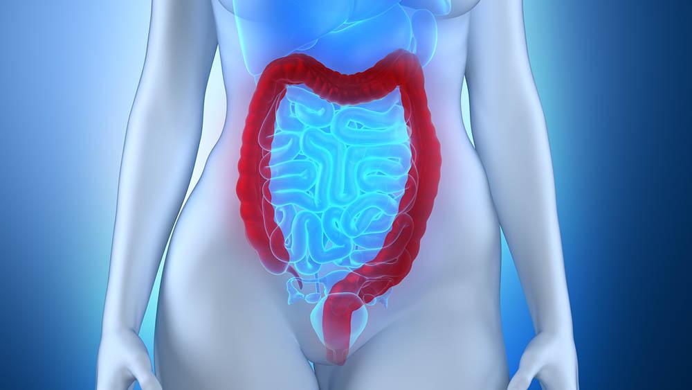 colorretal colon reto