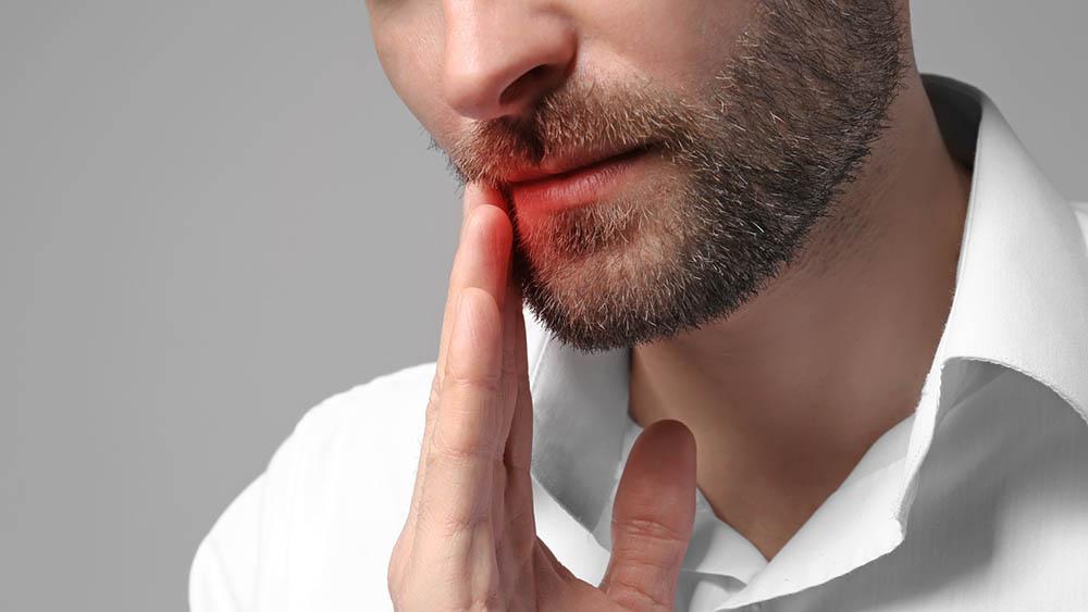 afta dor boca